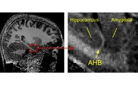 A Sharper View into the Brain