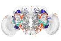 Hirnregionen automatisch bestimmen