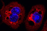 Bakterielles Protein beeinträchtigt wichtige Zellprozesse
