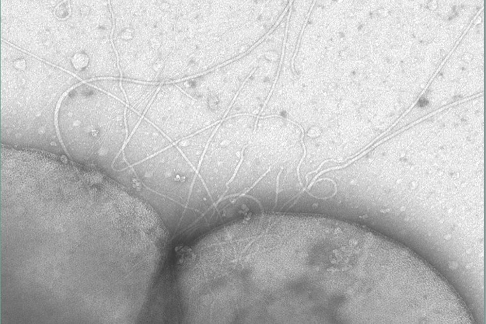 Die Fortbewegung der Zelle